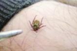 昆明市疾控中心建议:蜱虫在昆明不常见 但不可不防